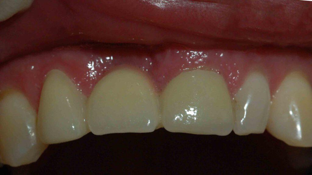 Zahnersatz - Zahnarztpraxis Dr. Loos in Chemnitz
